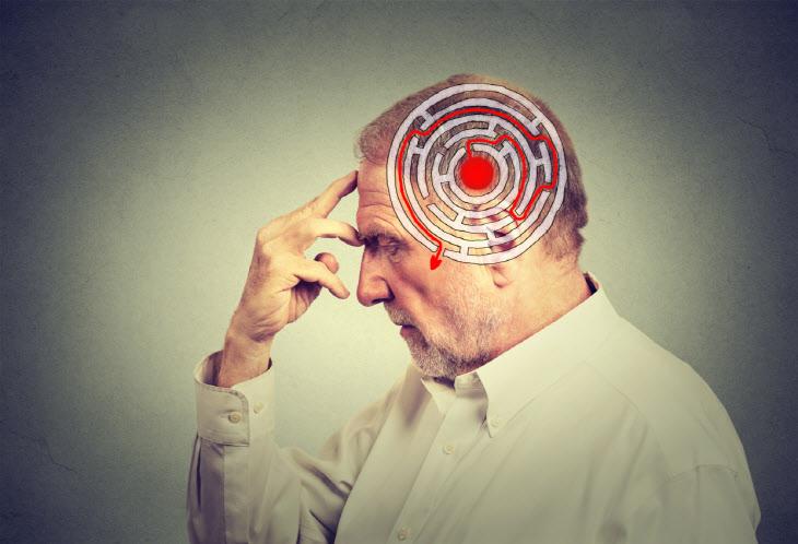 알츠하이머병