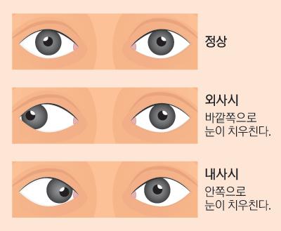 14면_유소아기눈관리